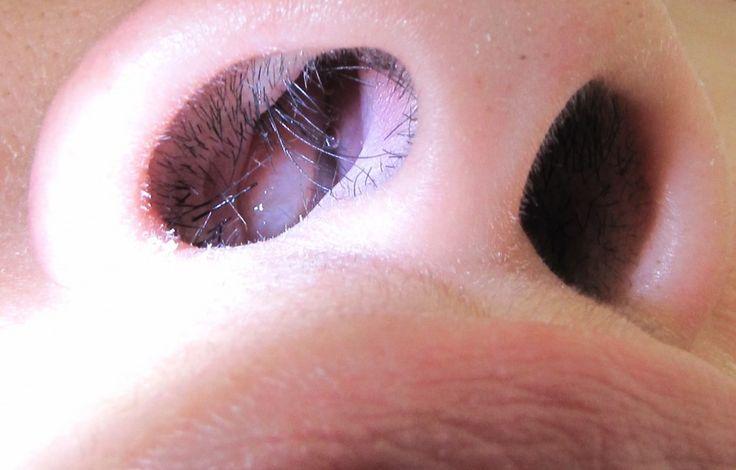 Symptoms of Nasal Sinus Polyps - Nasal Polyps Remedy | Nasal Polyps Remedy