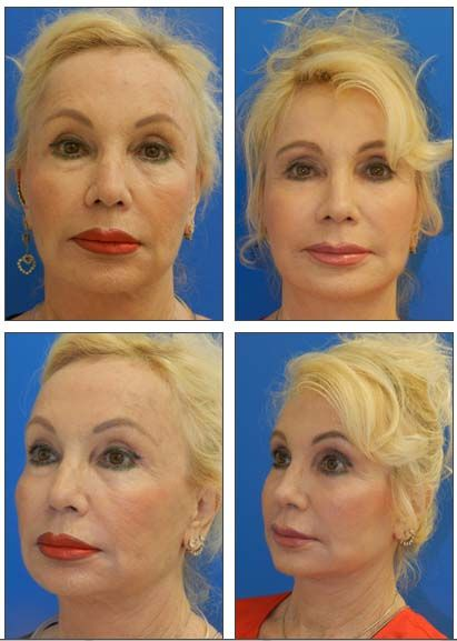 Busty women facials