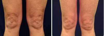 Laser skin tightening of the knees at Blue Water Spa in Raleigh, NC.  Laser skin tightening is FDA approved to drastically improve skin's texture and overall appearance.  This treatment can be performed anywhere on the face or body. http://www.bluewaterspa.com/laser-skin-tightening.html