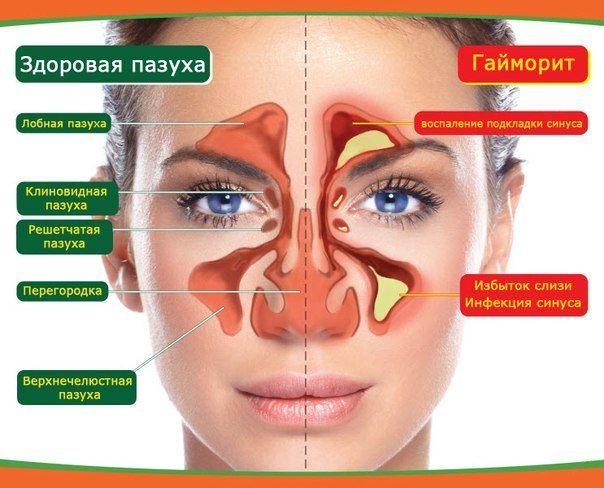 Домашнее лечение гайморита и синусита