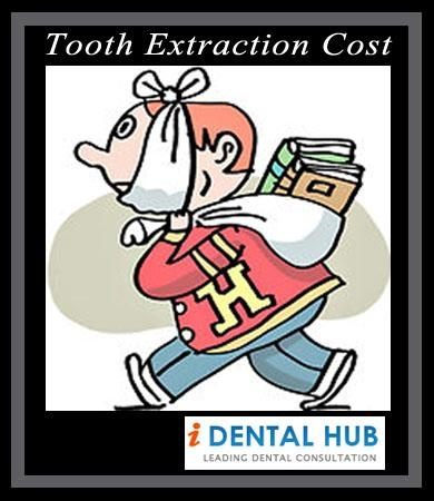 Tooth extraction cost depends on the condition of tooth and procedure used for tooth extraction. Cost of simple tooth extraction is $100-$150.