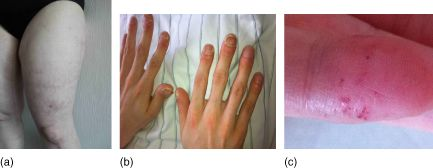 """Clinical signs of vasculitis mimics: (a) livedo racemosa in Sneddon's syndrome; (b) juvenile stroke with pulmonary AV-shunts: Morbus Osler; (c) angioceratoma in Fabry's disease."""