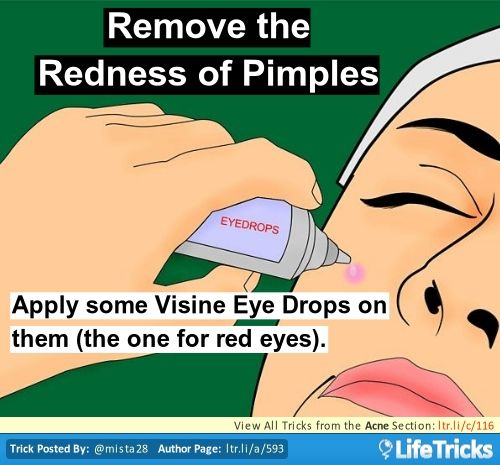 how to get rid of acne redness instantly