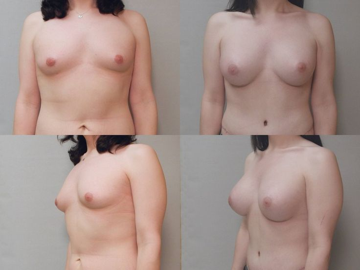 Breast development during puberty