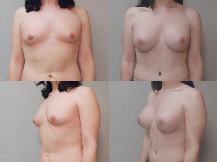 breast results mtf