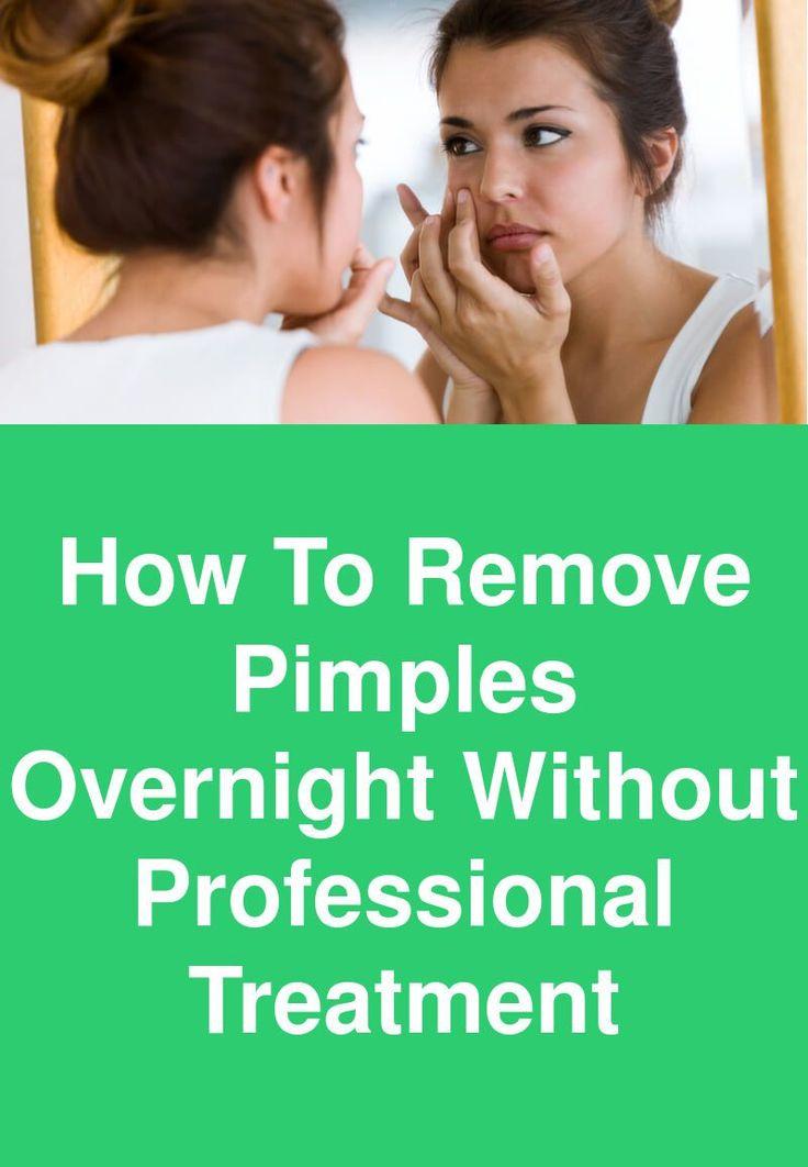 So entfernen Sie Pickel über Nacht ohne professionelle Behandlung