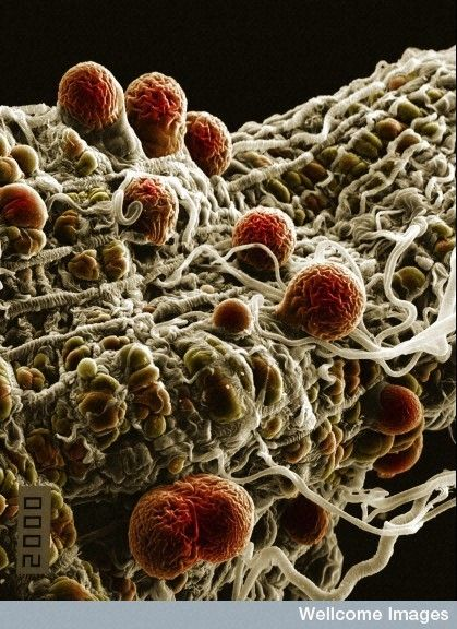 Amazing!   Colorized scanning electron micrograph of malaria (Plasmodium yoelii nigeriensis) oocysts ( thick-walled structure in which sporozoan zygotes develop) developing on the midgut wall of the mosquito Anopheles.    Credit: Hilary Hurd, Wellcome Images