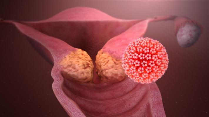 virus del papiloma y sus sintomas