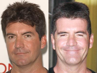 Simon Cowell Before And After Celebrity Botox Before