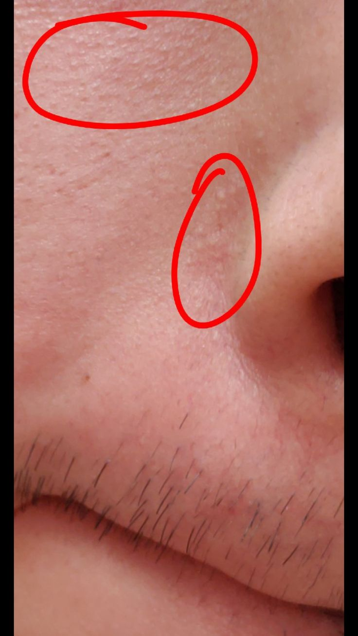 [Skin concern] How can I get rid of these whiteheads