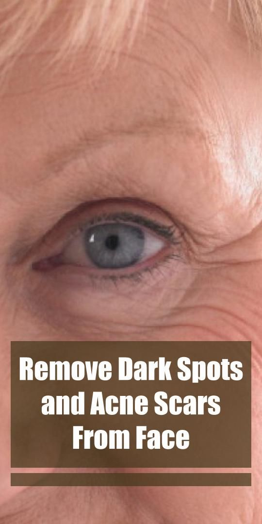Remove Dark Spots, Acne Scars And Patches From The…