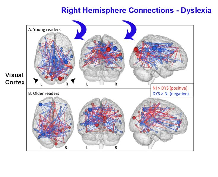 Disruption of Functional Networks in Dyslexia: A Whole-Brain, Data-Driven  Analysis of Connectivity - Biological Psychiatry