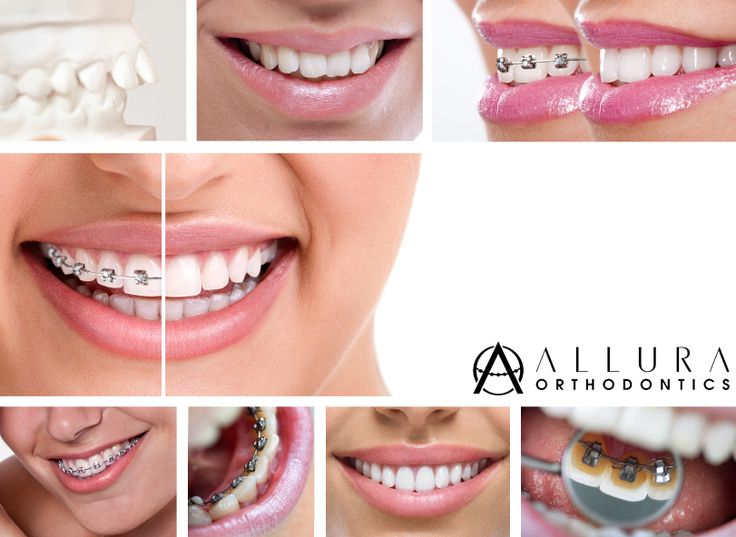 Braces can vary in cost, especially if you do not have insurance. Find everything you need to know about cost of braces at http://alluraortho.com/how-much-do-braces-cost  #AlluraOrtho #Dental #Screening #Smile #happy #beforeandafter #smiledesign #Treatment #braces #patients #orthodontic #Trytoday
