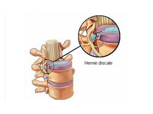 Les symptômes d'une hernie discale