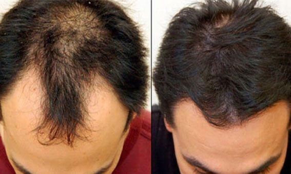 زراعه الشعر في جده أفضل عيادات زراعه الشعر Hair Implants Best Hair Transplant Hair Loss Solutions