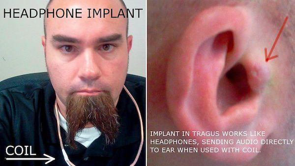 Cyberpunk – Il se greffe des écouteurs directement dans l'oreille