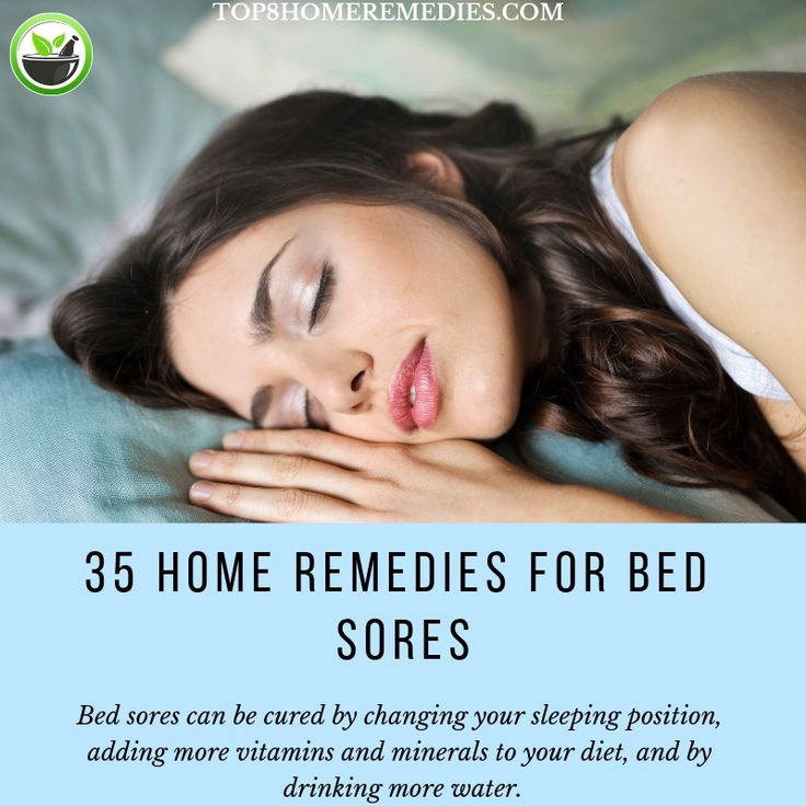 how to treat bed sores on buttocks