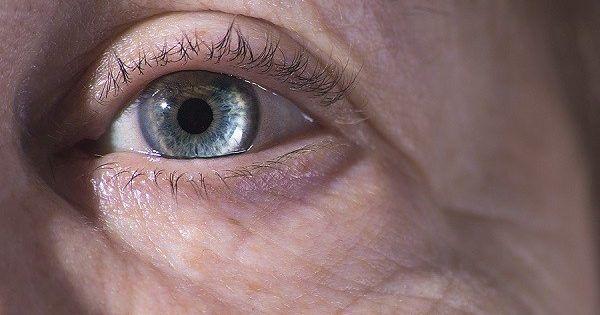 Πιθανώς ό,τι ο πολύς κόσμος: πρόβλημα στα μάτια που αφορά τους ηλικιωμένους. Αν και αυτό είναι αναμενόμενο, δεδομένου ότι τον εκδηλώνουν πάνω από τους μισο