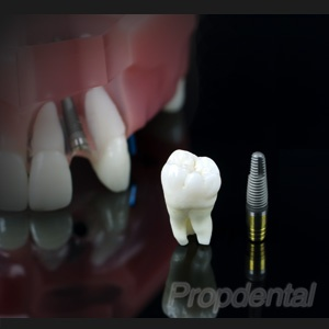 Implantes dentales en Barcelona, cirugía de la colocación y testimonios de pacientes http://www.propdental.es/implantes-dentales/