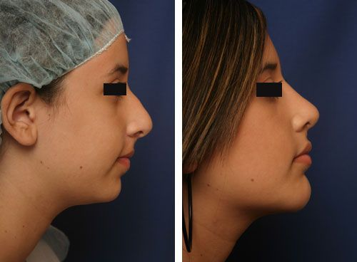 Chin Implant Beverly Hills