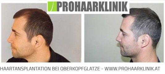 FUE Haarimplantation Vorher Naccher Medium Fotos, Ergebnisse  http://www.prohaarklinik.at/haartransplantation-vorher-nachher-bilder/