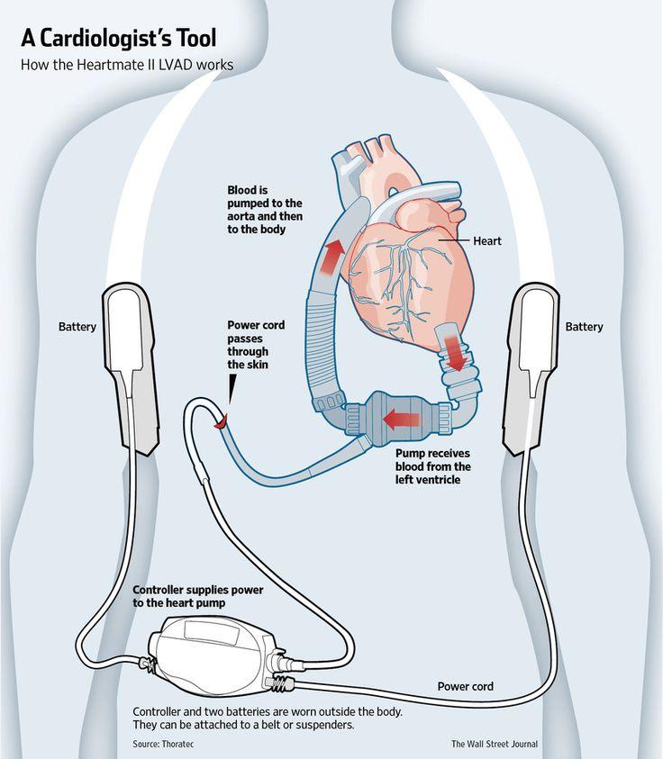 心臓機能回復の仕組みを意外にも示した機械式ポンプ