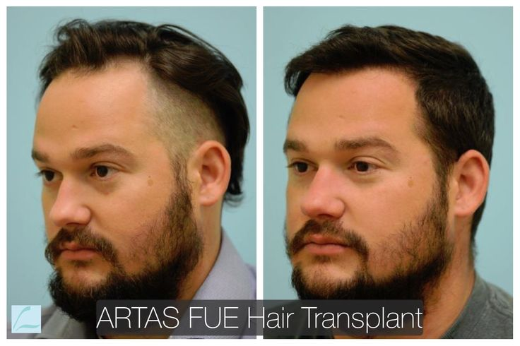 ARTAS FUE hair transplant