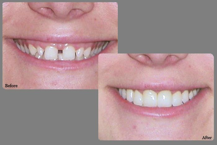 Bonding: Permanent and quick option for teeth gaps. #bonding #cosmeticdentistry