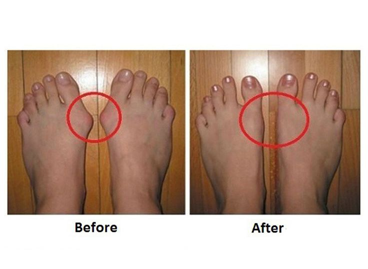 Bunions form when the bone or tissue at the joint at the bottom of the big toe moves out of place. Here is how to cure them!
