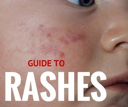 Where can you find pictures of children with rashes?