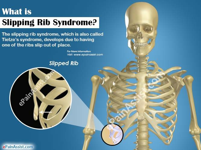 The slipping rib syndrome, which is also called Tietze's syndrome, develops due to having one of the ribs slip out of place. The eighth, ninth, and tenth ribs are the likeliest to end up slipping out of their places, are they are not attached directly to the sternum like the other seven. Know the causes, symptoms, treatment and recovery period for slipping rib syndrome.