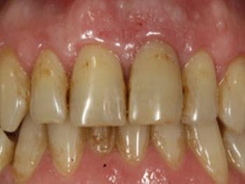 Blanqueamiento dental | todo en blanqueamiento dental