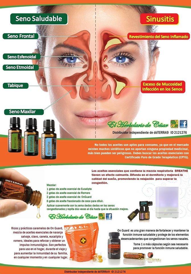 SINUSITIS, MUY MOLESTA Y PUEDE LLEGAR A SER DOLOROSA… La aromaterapia puede funcionar como una forma natural para aliviar los síntomas de la sinusitis y disminuir su recurrencia, sin los efectos secundarios que incluyen algunos medicamentos prescritos. Existen aceites esenciales que tienen propiedades antiinflamatorias como antisépticas o antimicrobianas, que realmente ayudan a aliviar los síntomas.