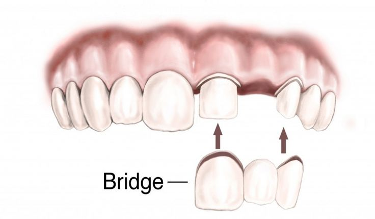 Dental Bridges A bridge is one of the few options to replace lost teeth. The replacement of missing teeth is necessary in order to prevent problems related to eating and speaking, and to maintain the alignment of other teeth in your mouth. For more information visit: www.coltonfamilydentist.com