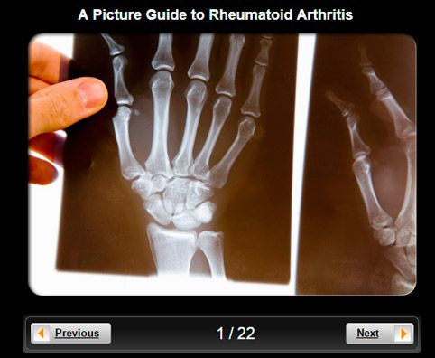 Rheumatoid Arthritis (RA) Pictures Slideshow & good info
