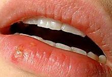 Qu'y a t-il de plus désagréable qu'un bouton de fièvre juste au bord des lèvres ou sur le nez ? Surtout quand c'est à répétition... Vous le savez comme moi, lorsque l'on a un bouton de fièv...