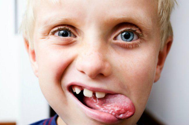 Cómo curar llagas en la lengua - IMujer