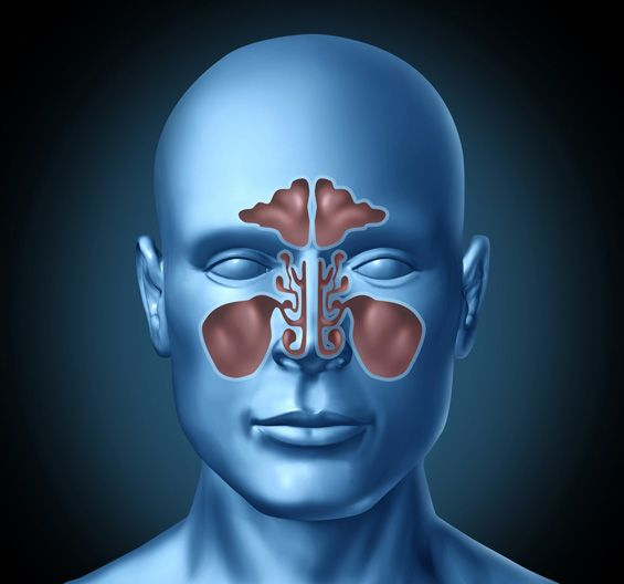 Sinusitis - Inflammation of the paranasal sinuses