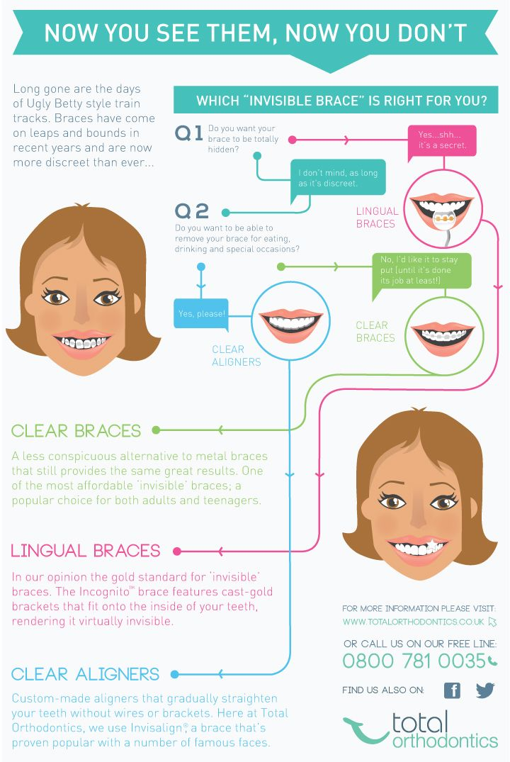 """Which """"invisible"""" brace is right for you? Lingual braces, clear braces, clear aligners...#infographic"""