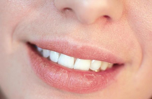Caring For Your Lips In #Winter!  15 Best Home Remedies for Dry and Chapped Lips