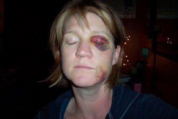 End Trigeminal Neuralgia: A Face Behind The Pain