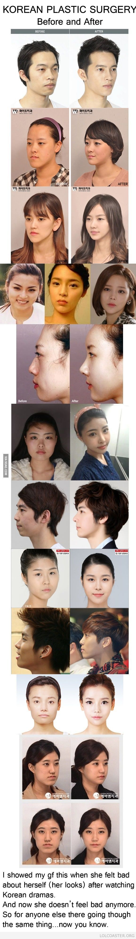 Extreme Korean plastic surgery