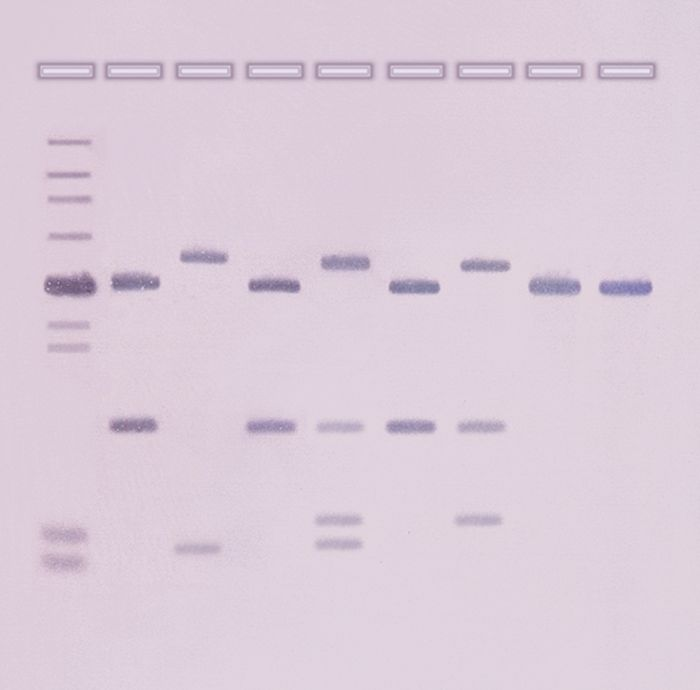 311 - DNA Fingerprinting by Southern Blot