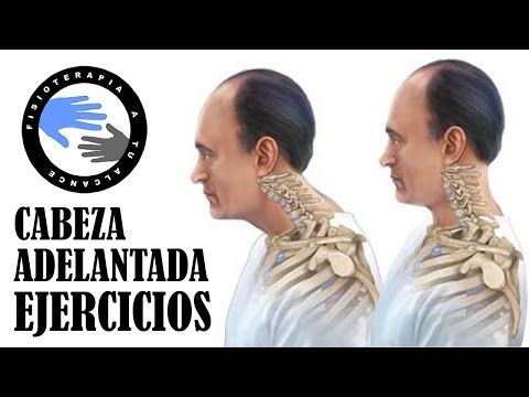 Cabeza adelantada, ejercicios para mejorar la postura o sindrome cruzado superior - YouTube