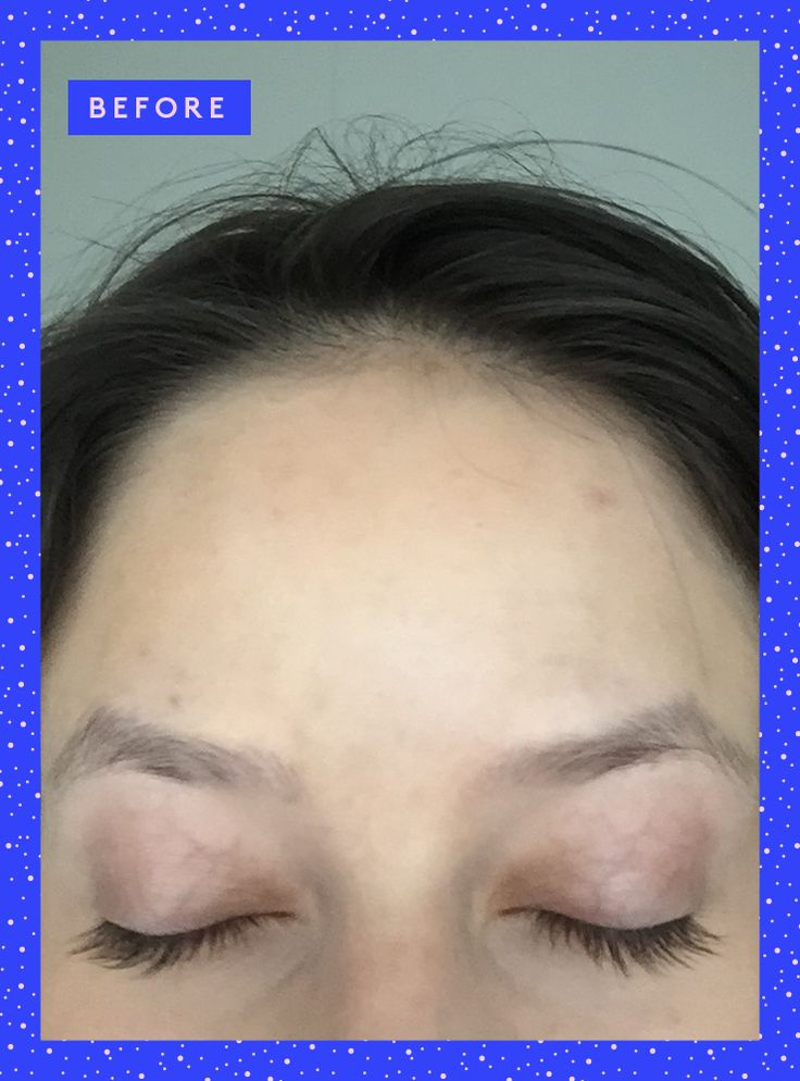 Why I Tattooed My Eyebrows — & What It Was Really Like #refinery29  http://www.refinery29.com/3d-eyebrow-embroidery#slide-5