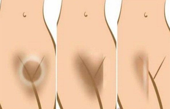 how to make inner thighs fair