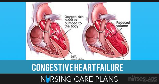Heart failure is a physiologic state in which he heart cannot pump enough blood to meet the metabolic needs of the body. Heart failure results from changes in systolic or diastolic function of the left ventricle. Here are 10 Nursing Care Plans for Congestive Heart Failure.