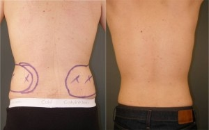 Waist Liposuction: Before and After