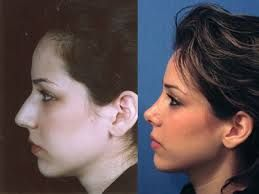 Image result for persian nose jobs before and after