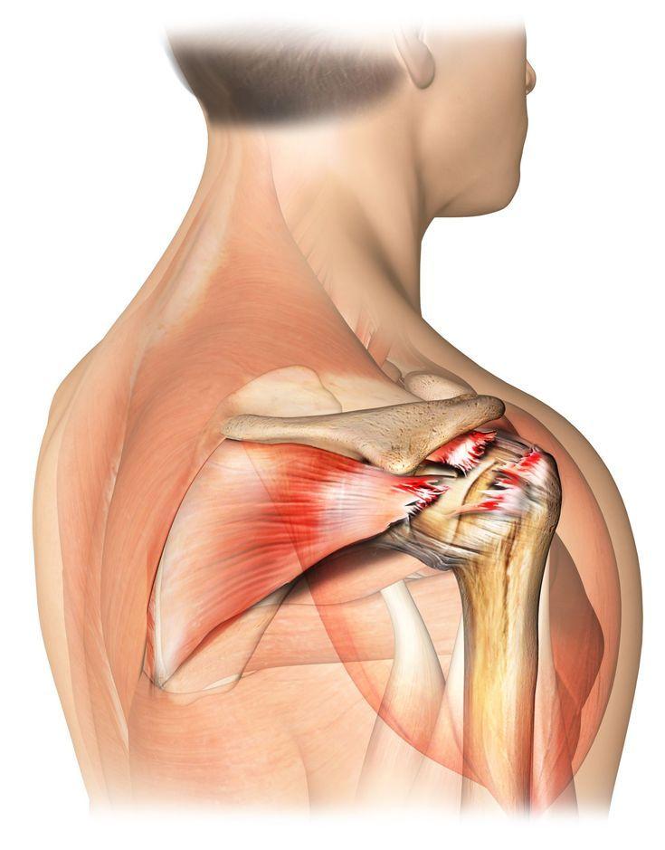 Rotator Cuff Tears Along With Severe Arthritis